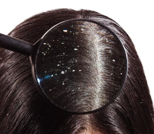 The Dos And Don'ts Of Dealing With Dandruff