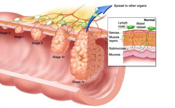 Anal Warts - Symptoms And Treatment